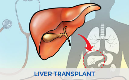 What Is A Liver Transplant, Who Needs It?