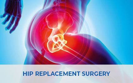 Getting Back On Your Feet After Hip Replacement Surgery