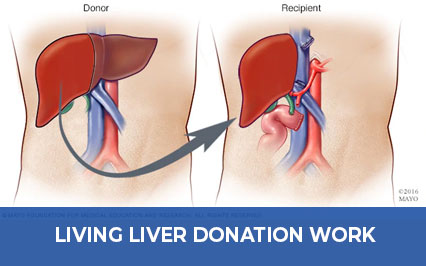 Know How Does Living Liver Donation Work