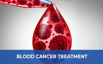 Best Treatments Available for the Blood Cancer