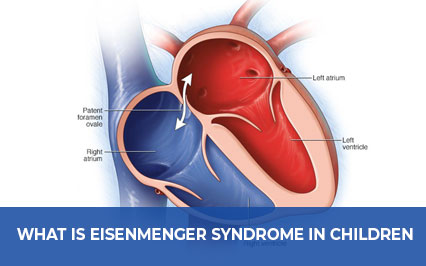 What is Eisenmenger Syndrome in Children