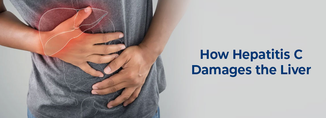 How Hepatitis C Damages the Liver