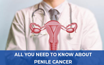 All You Need to Know About Penile Cancer