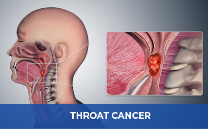 Throat Cancer: Don't Take The Signs For Granted