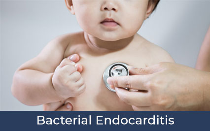 Bacterial Endocarditis: All You Need to Know